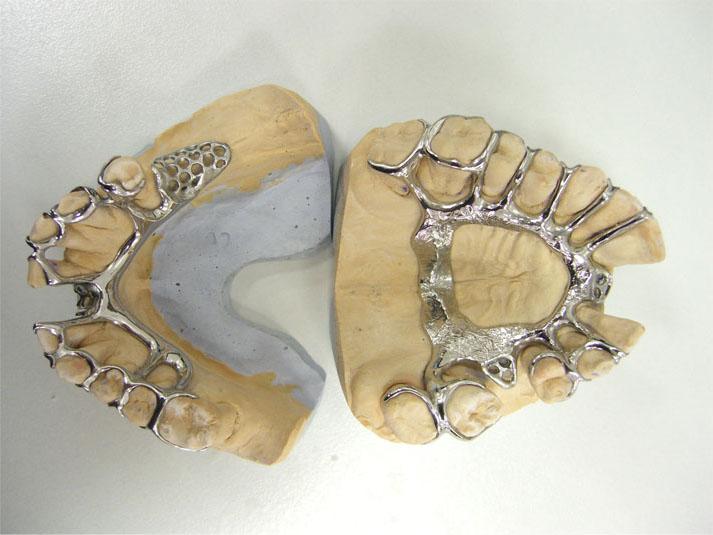Бюгельные протезы: этапы изготовления и технология