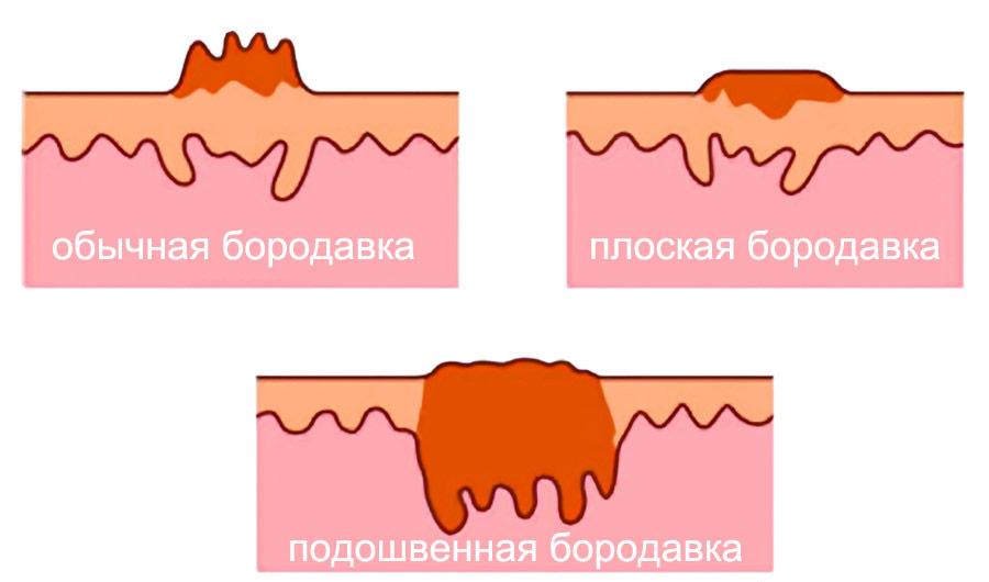 Виды бородавок