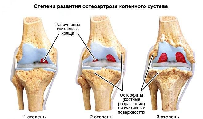 Степени и способы лечение артроза коленного сустава
