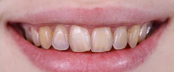 Что такое эрозия эмали зубов?