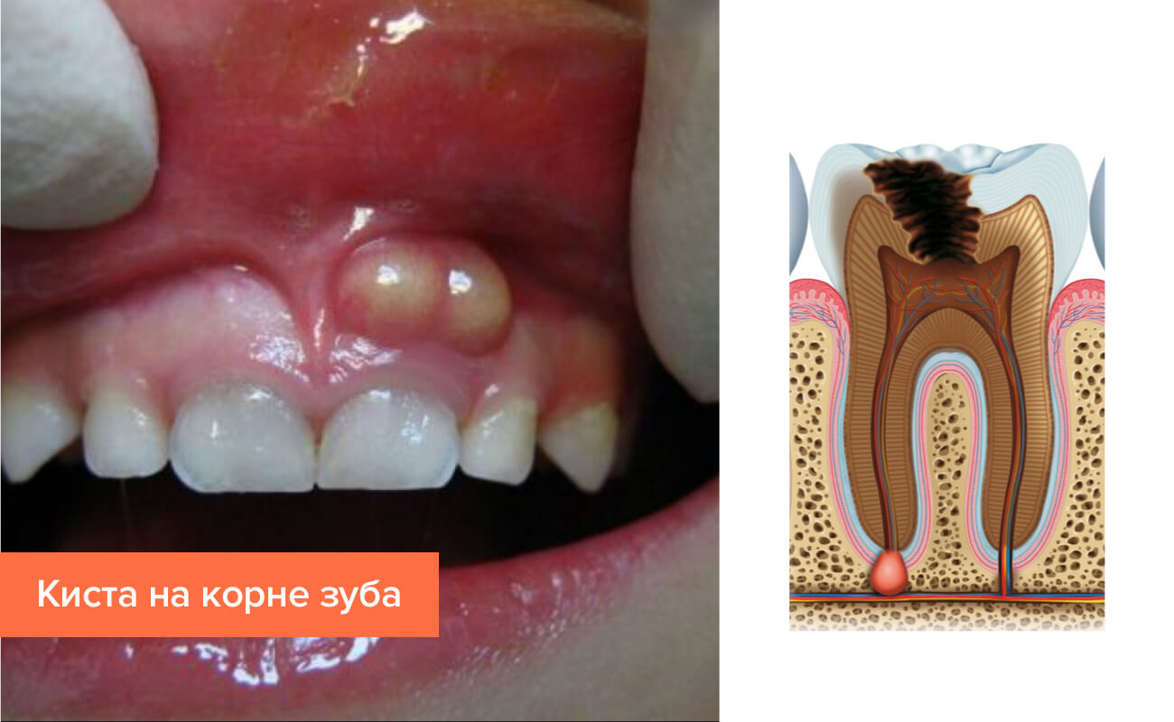 Лечение кисты без удаления зуба
