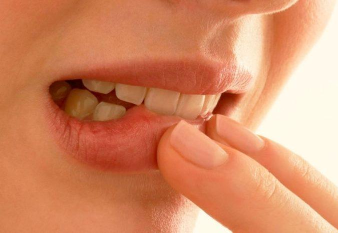 Как вылечить стоматит на щеке?