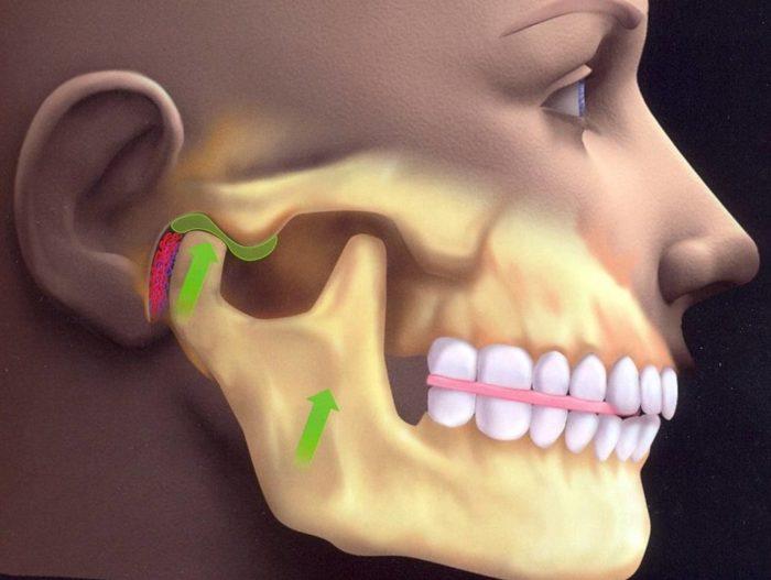 Почему может болеть челюсть?