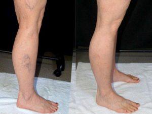 варикозная сеточка на ногах
