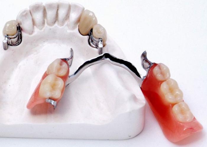 Иммедиат протезы: клинико лабораторные этапы изготовления