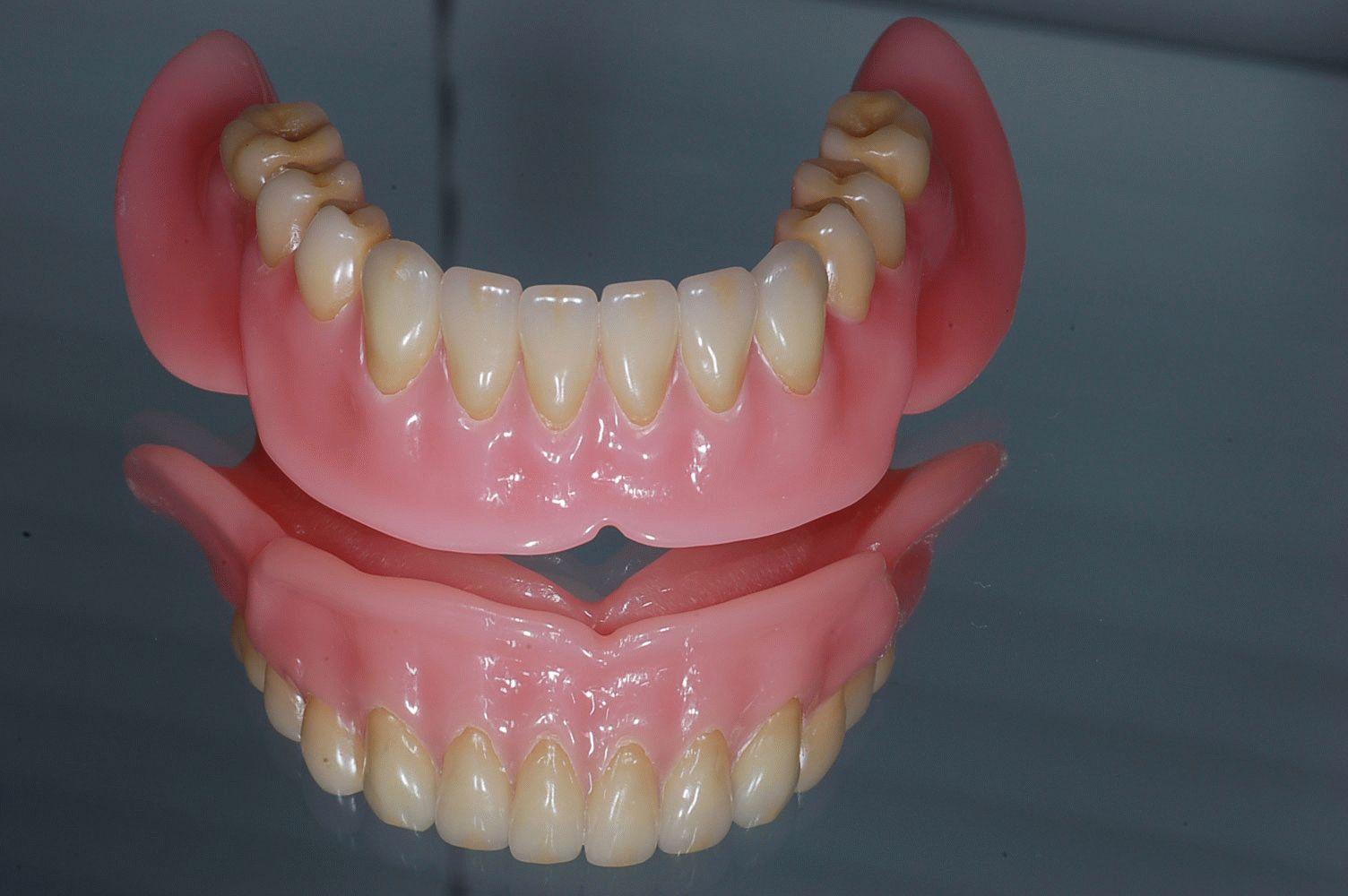 акриловый зубной протез фото отзывы особо охраняемые территории
