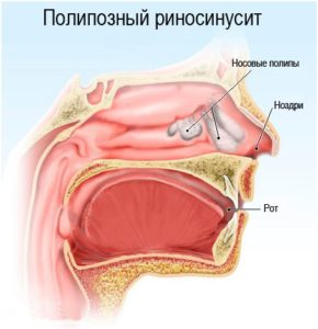 Полипозный риносинусит