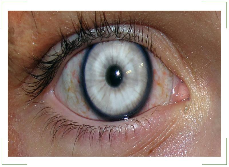 Помутнение-роговицы-глаза
