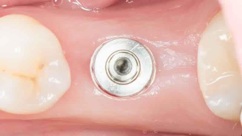 прокол десны имплант