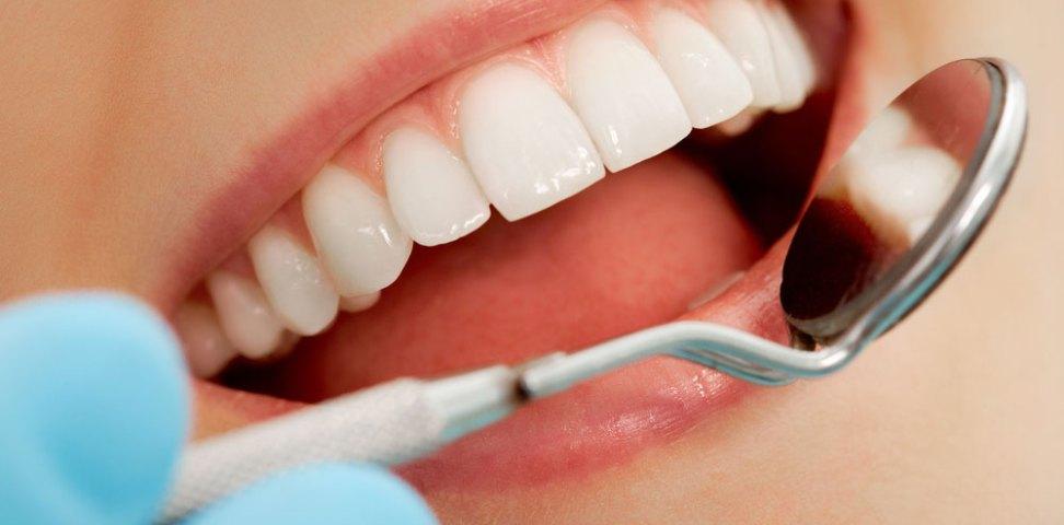 Особенности проведения полировки зубов
