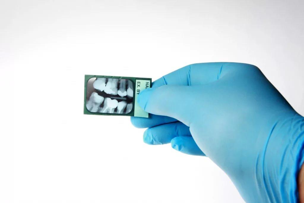 Рентген зубов: разновидности и вред для организма