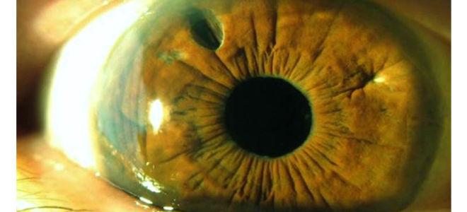 Афакия глаза