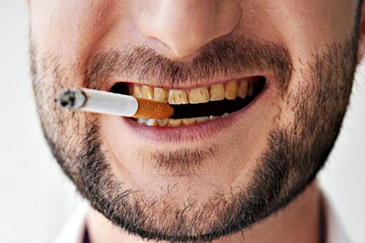 налет зубы