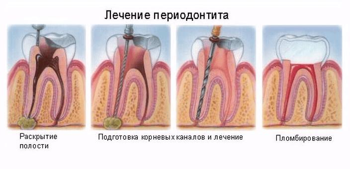Хронический апикальный периодонтит