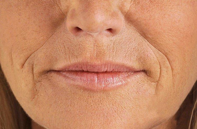 Маски для зрелой кожи после загара