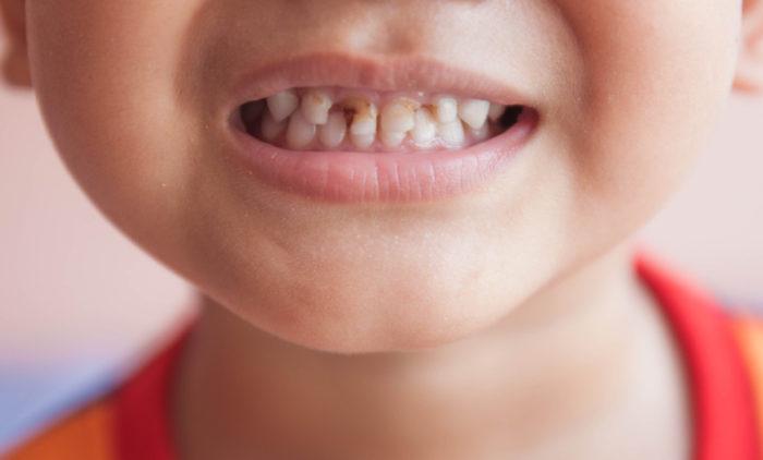 Ставят ли пломбы на молочные зубы