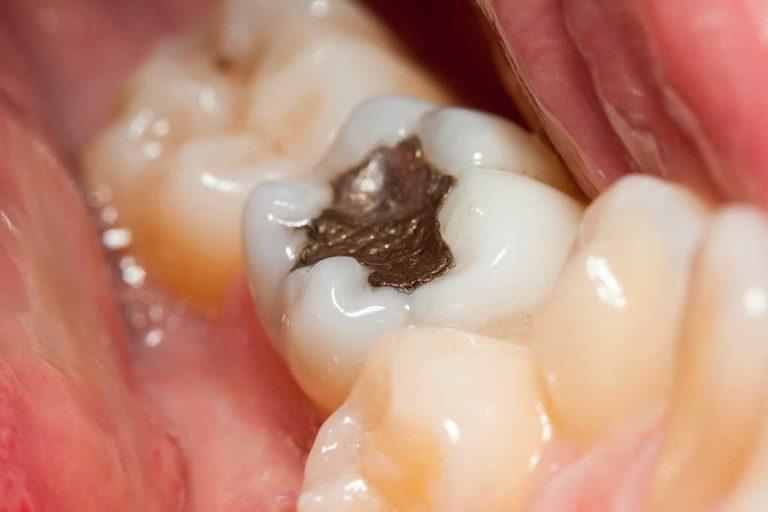 Больно ли ставить пломбу на зуб