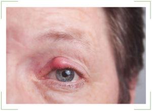 Жировик на веках глаз (липома)