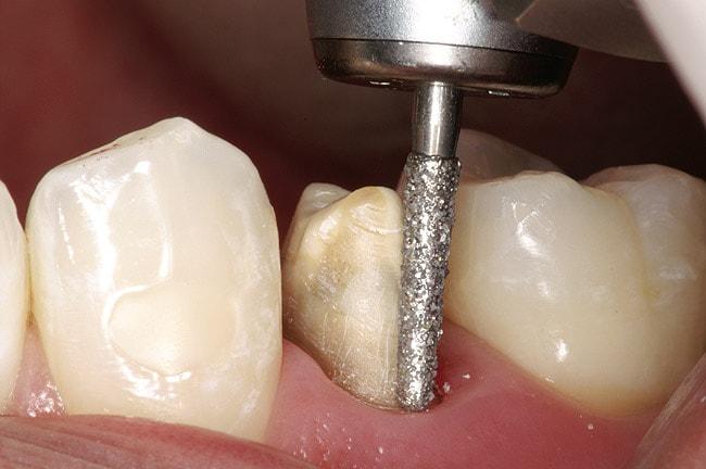 Для чего проводят подпиливание зубов?