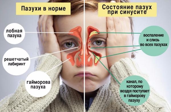 Пансинусит - воспаление нескольких пазух