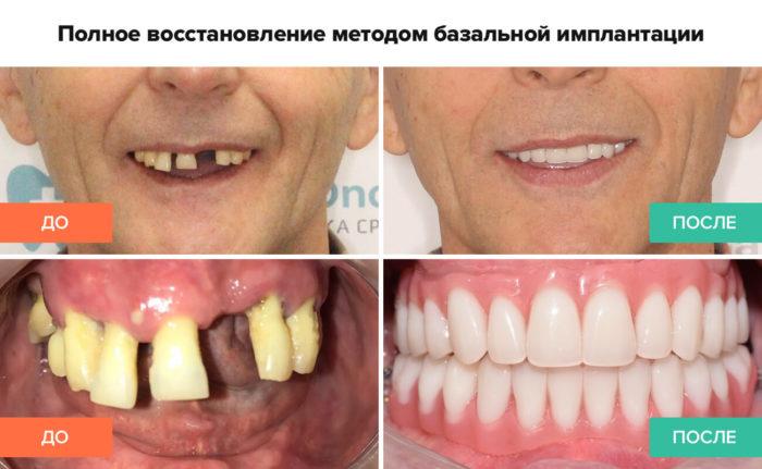 базальный метод имплантации