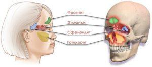 Сфеноидит и другие виды синуситов