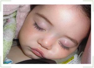 Халязион у ребёнка