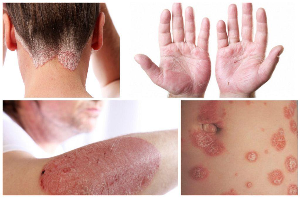 Как защитить кожу от распространенных заболеваний?