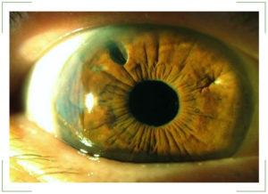 Афакия глаза отсутствие хрусталика в глазу