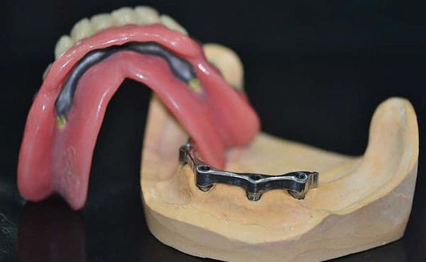 Балочная система фиксации бюгельных протезов