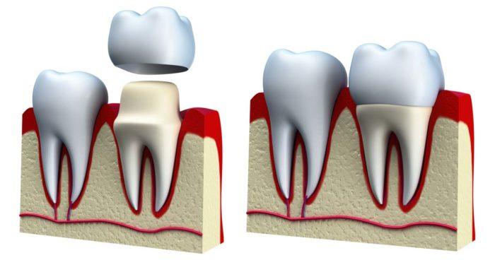 Как проводится установка коронки на зуб
