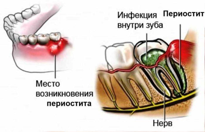 Острый гнойный периостит нижней челюсти