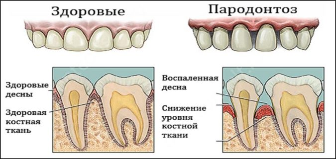 Красная десна вокруг зуба, опасно ли это?