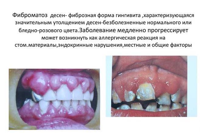 болезнь десен