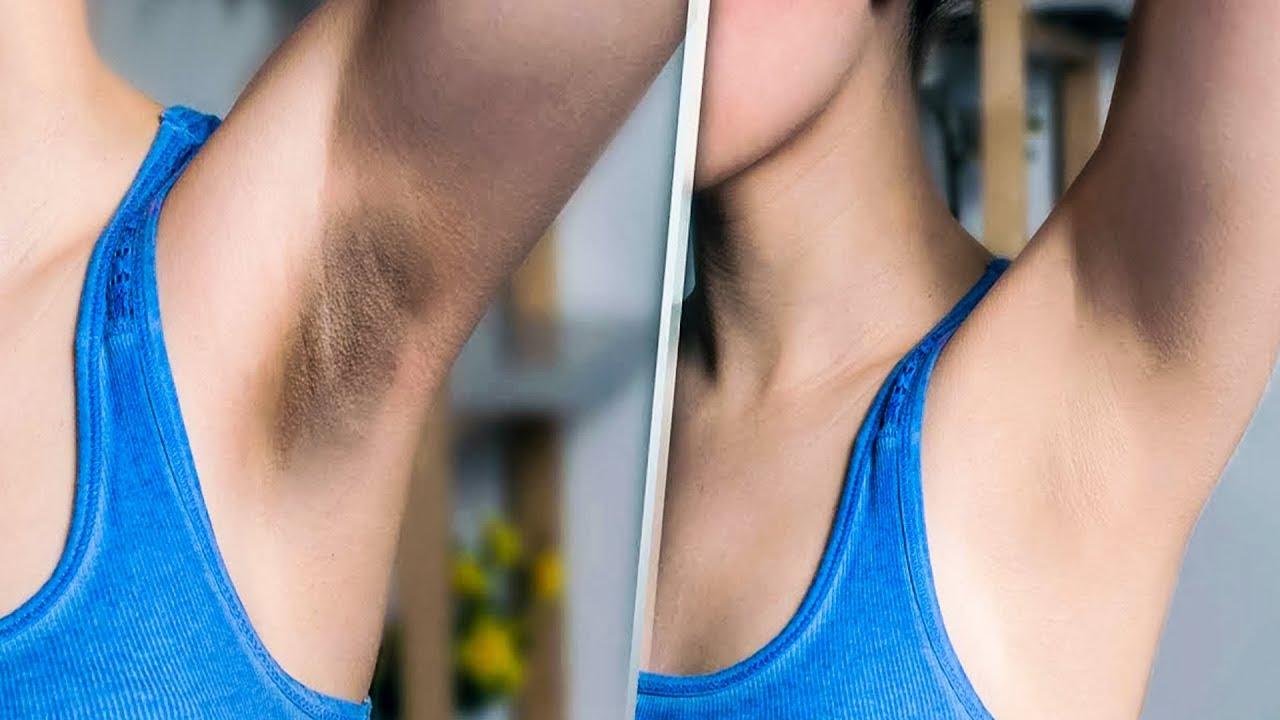 Как отбелить кожу подмышек в домашних условиях?