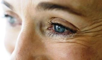 Гусиные лапки, морщины у глаз