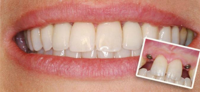 Имплантация передних верхних зубов