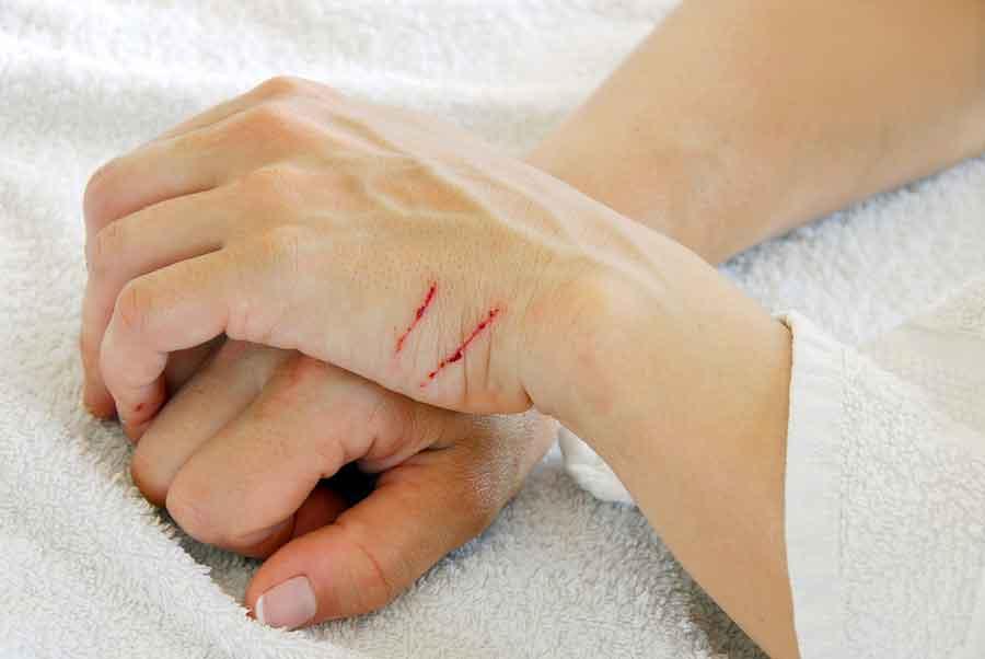 Поцарапала кошка – чем и как обработать кожу правильно?