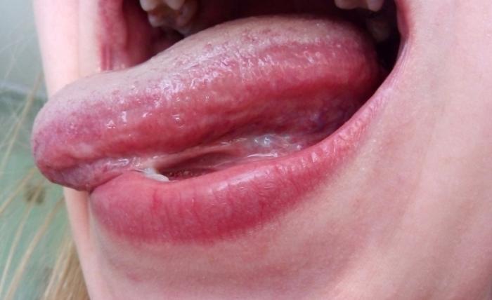 Причины появления отпечатков зубов по краям языка