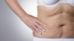 Дряблая кожа тела – как восстановить?