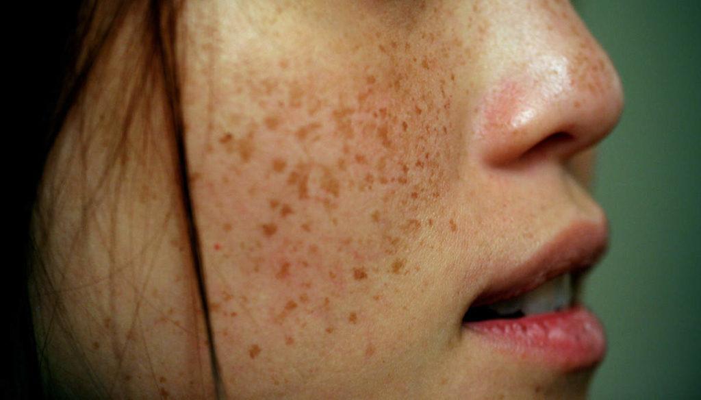 Что вызывает пигментацию кожи?