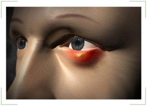 Что делать, если ячмень на глазу долго не проходит?