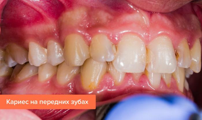 Что делать, если появился кариес на передних зубах?