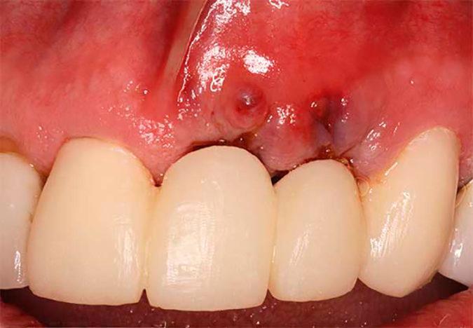 Удаление импланта зуба и показания к проведению операции