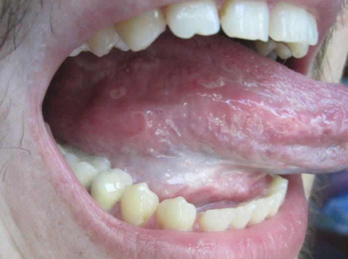 Болит под языком - как убрать боль и что делать?