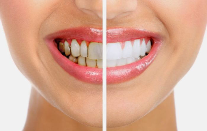 Чистка зубов солью