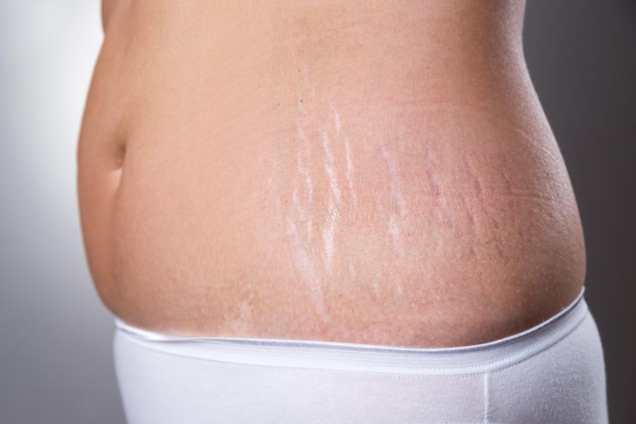 Как быстро убрать растяжки на коже от резкого сброса веса?