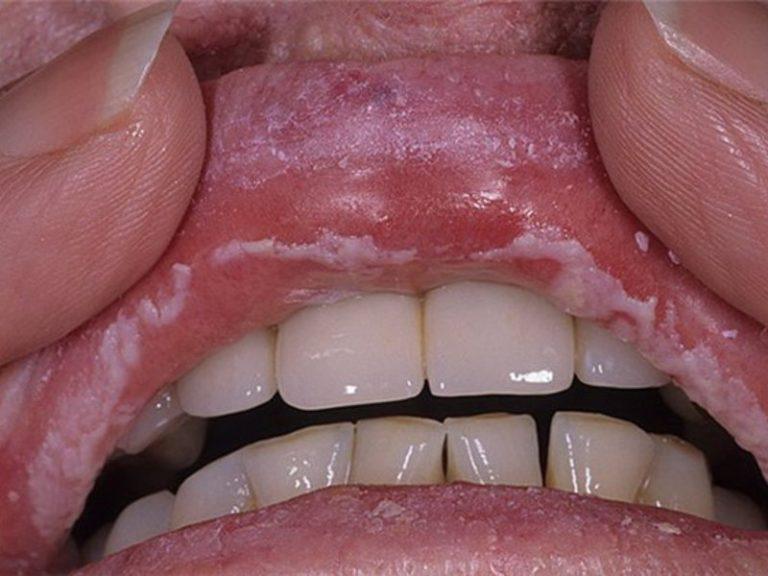 Белый налет на губах: причины у взрослых