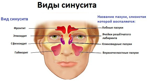 В чем разница между синуситом и гайморитом, какие основные отличия?