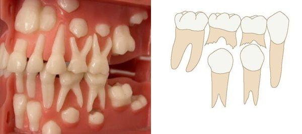 Коренные зубы у детей: порядок прорезывания